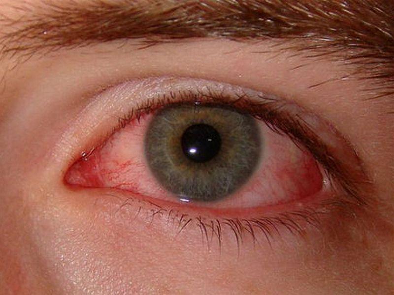 Bahaya Main HP Lama Bisa Menyebabkan Kerusakan Mata